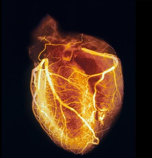 عکس قلب انسان