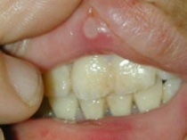 برای درمان آفت دهان چه بخوریم؟