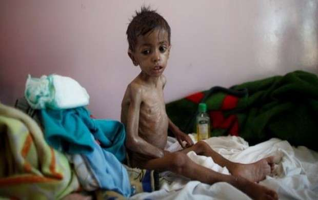 وبا در يمن و توطئه پنهان آمريكا و عربستان + جزییات