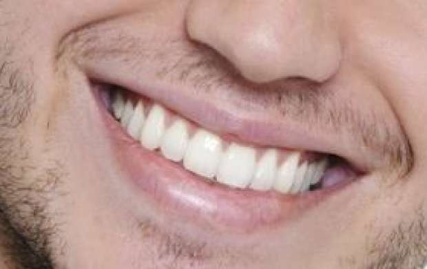 ۶ اشتباهی که دندان ها را زرد می کنند