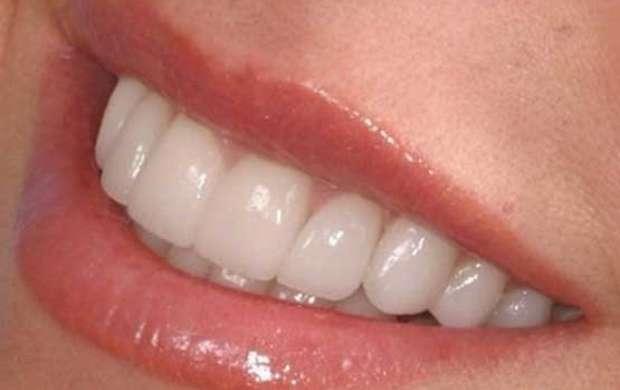 چند راهکار مفید برای از بین بردن جرم دندان