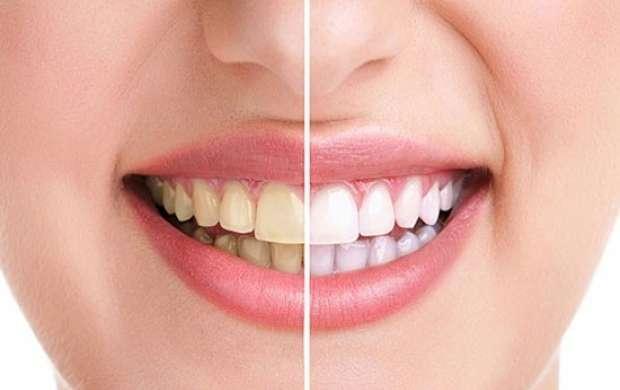 روش های ساده خانگی برای سفید کردن دندان
