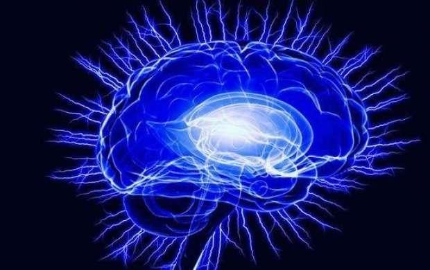 موزه مغز در باغ کتاب تهران راه اندازی می شود