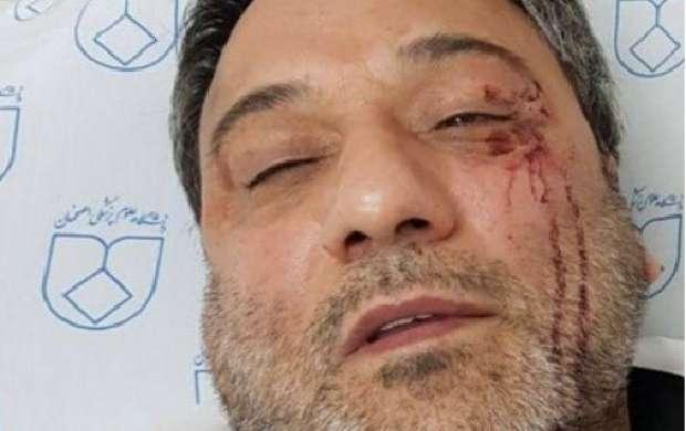 جزییات حمله همراهان بیمار به پزشک