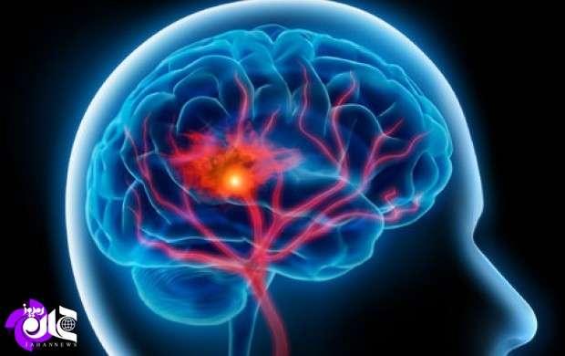 تزریق بوتاکس به بیماران سکته مغزی رسید