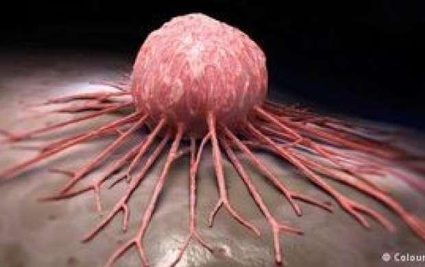 کدام مردان بیشتر مبتلا به سرطان مثانه می شوند؟