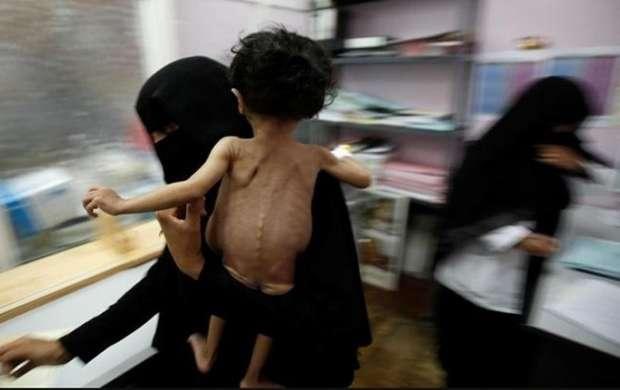 کمبود شدید دارو در استان صنعاء یمن