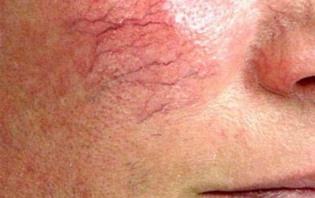 علل و راه درمان رگ های عنکبوتی صورت