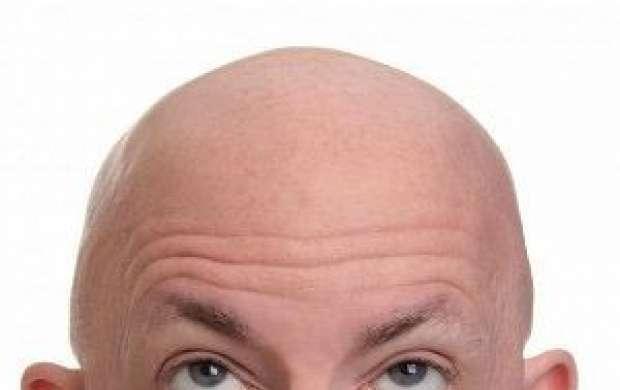 بدون ریزش مو لاغر شوید