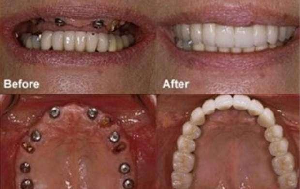 مواردی که باید درباره ایمپلنت  دندان بدانید