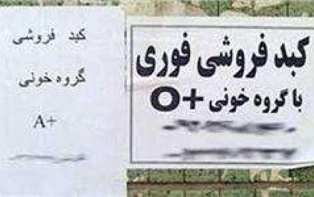 ماجرای فروش کبد ۵۰۰ میلیونی در تهران