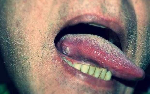 سرطان زبان چه نشانههایی دارد؟! +تصاویر