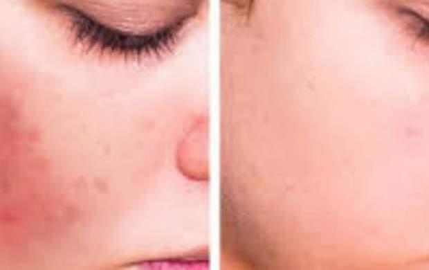 با این ۵ روش از شر لکههای پوستی خلاص شوید