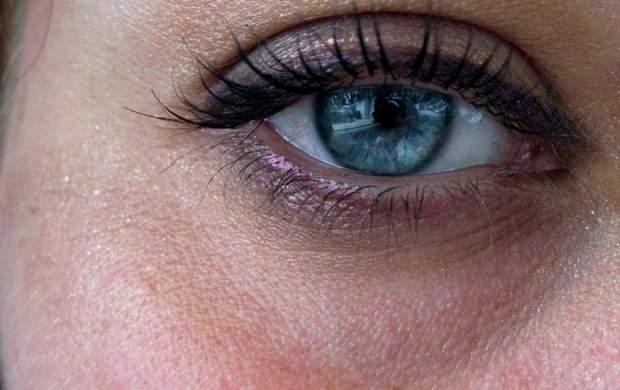 چگونه تیرگیهای دور چشمها را نابود کنیم؟