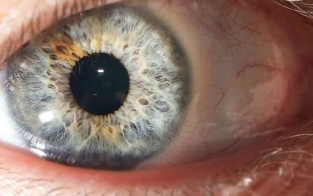 کرونا موجب بروز چه عوارضی روی چشم میشود؟