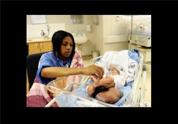 nf00235092 2  تولد نوزادی با مغز خارج از جمجمه+عکس